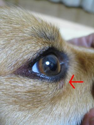 目の腫れ9.6