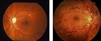 視神経乳頭浮腫が意味するもの