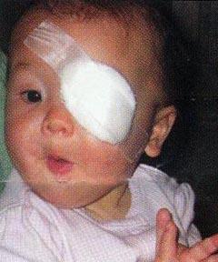 インファント・シー・プログラムが赤ちゃんの命を救った